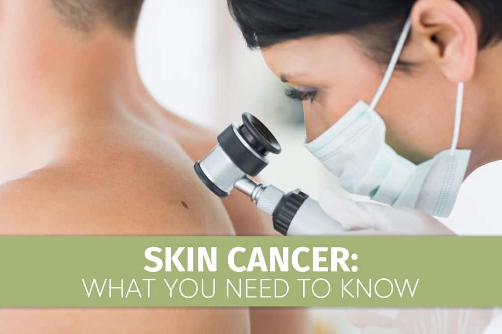 Skin Cancer1